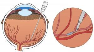 retinal-vein-robot02